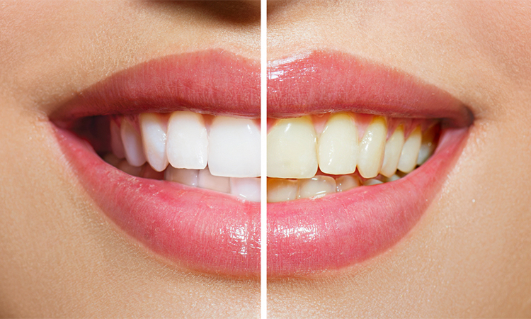 Best Whitening Toothpaste in 2019